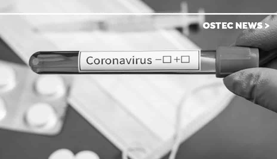 "Tubo de ensaio com etiqueta onde se pode ler ""coronavírus""."